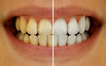 Teeth whitening Southern Pines